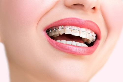 Niềng răng 3 tháng sau sẽ như thế nào?